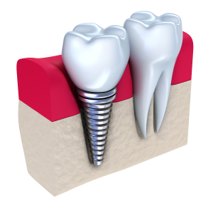 San_Diego_Dental_Implants